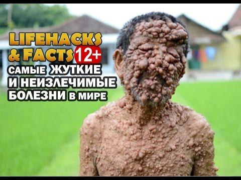 Самые УЖАСНЫЕ и НЕИЗЛЕЧИМЫЕ болезни в мире. От LIFEHACKS&FACTS!