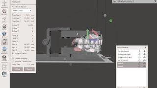 Building Dental Models with Articulators for 3D Printing in Meshmixer