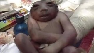 Смотреть онлайн Пакистанский ребенок без мозга