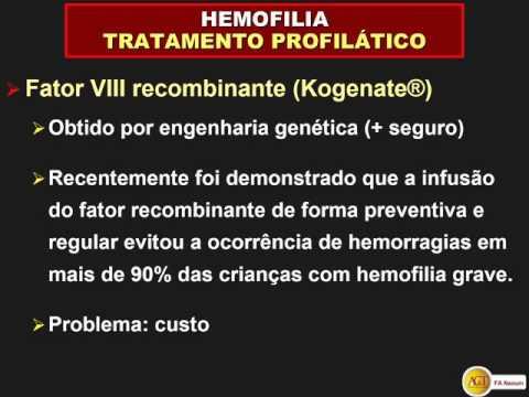 Artroza proces degenerativ al articulației intervertebrale