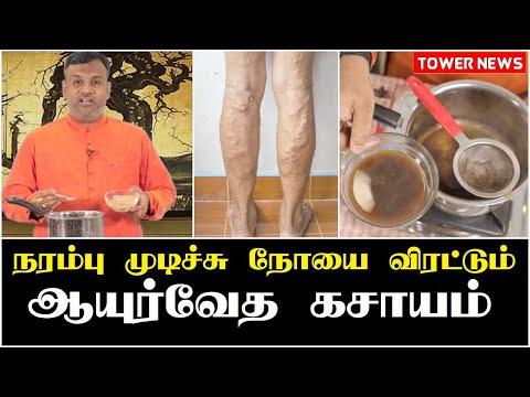 Mumia tratament varicoză