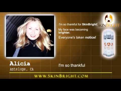 Song girlfriend pumunta magsunog ng video freckles