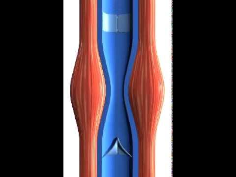 Wozu die Phlebothrombose auf den Beinen bringen kann