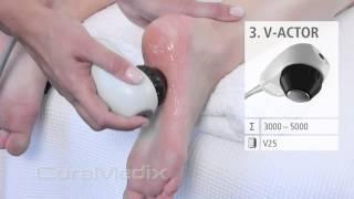 CuraMedix EPAT Treatment of Heel Pain