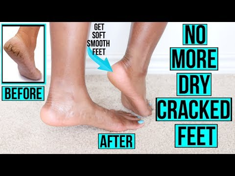 Video How to Get Rid of Dry Cracked Feet FAST & NATURALLY | AT HOME Remedies & MORE