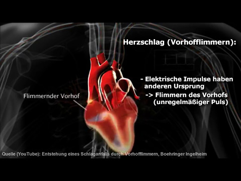 Hypertonie mit Nierenerkrankung Diagnose