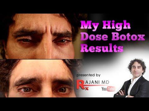 Botox Video
