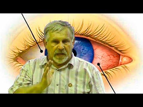 Диоптрии это близорукость или дальнозоркость