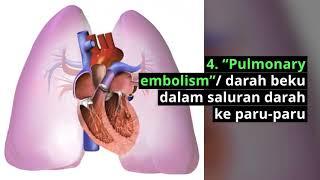 Penyebab Sakit Dada Sebelah Kanan (Right Sided Chest Pain) 45e669d05d