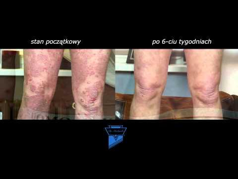 Jakie są objawy atopowego zapalenia skóry na zdjęciu