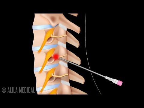 Szyjna neurotomia radialna - procedura