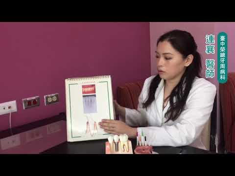 台中榮總-牙周病系列影片(二) 牙周病與牙齦炎