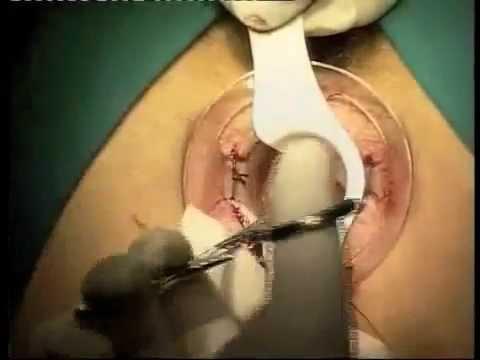 Se è possibile applicare candele di coronopo del mare da emorroidi per applicare vaginalno