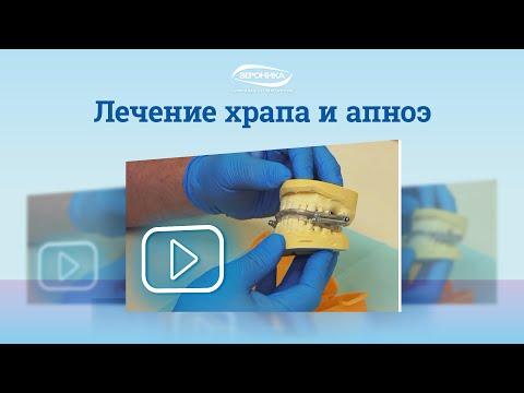 , title : 'Лечение храпа в Санкт-Петербурге – диагностика, лечение и профилактика апноэ'