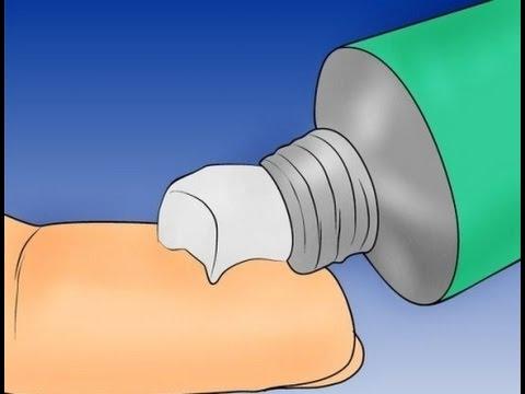 Como es posible arreglar el hongo de los pie