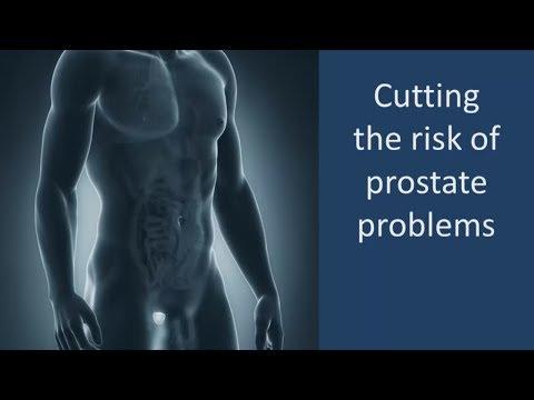Faire ultrasons de la prostate chez Novosibirsk