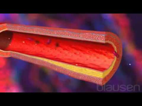 Appareil destiné à corriger une pression artérielle cardio des DENAS