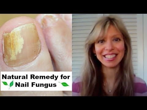 Onychomycosis fungal ointment