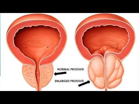 Menina que faz a linguagem de próstata massagem