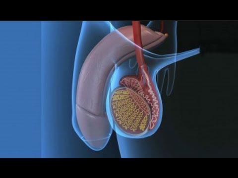 Vía la metástasis del cáncer de próstata