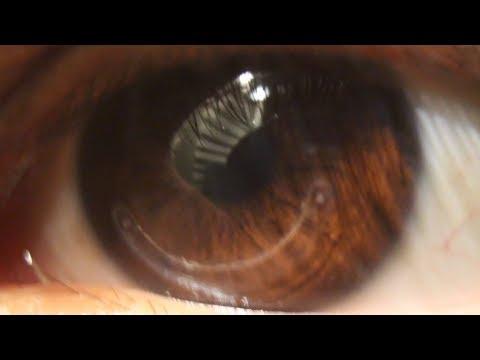 Hogyan javíthatja a látását 50 után