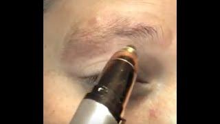 Augenbrauen Haarentferner, Augenbrauentrimmer, Augenbrauenrasierer