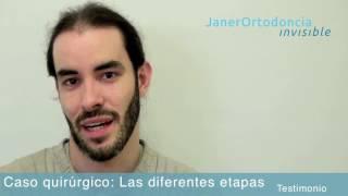 Testimonio: ortodoncia y cirugía: las diferentes etapas