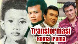 Transformasi roma irama dari kecil hingga menjadi raja dangdut