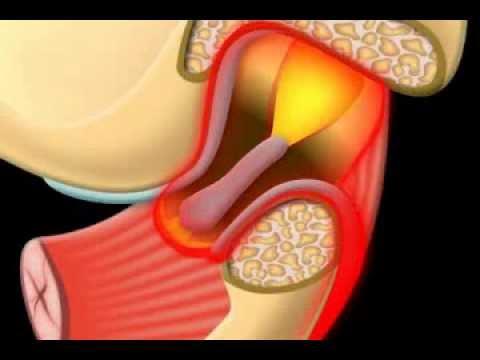 Symptome der zervikalen Hernie Behandlungs
