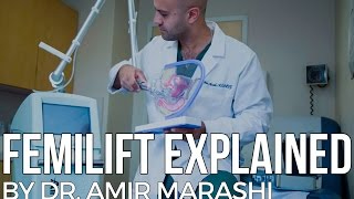 FemiLift Explained by Dr. Amir Marashi | Vaginal Rejuvenation