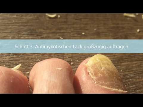 Klotrimasol hilft die Salbe von gribka