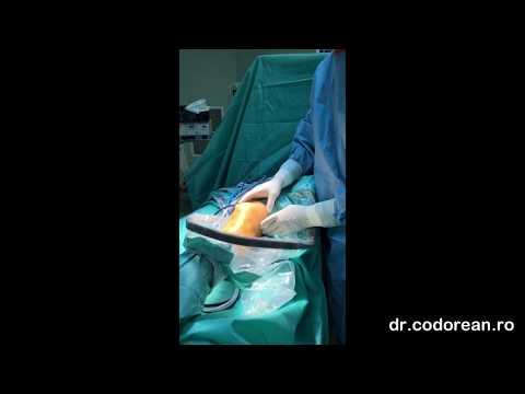 Calmant eficient pentru dureri articulare