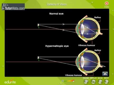 Mentse a látást glaukómában