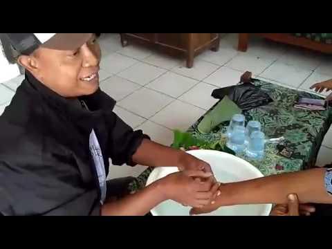 Video Anggota Polsek Jakenan Pati mengobati gigitan ular berbisa