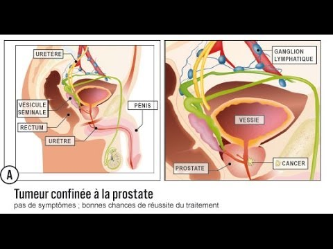 Home video massage de la prostate