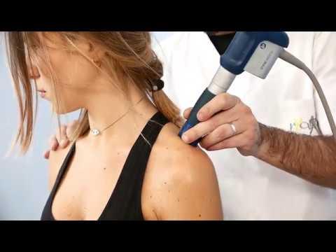 Se larticolazione della spalla dolente della mano destra che cosa fare come trattare