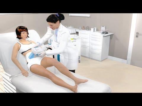 Behandlung von Schmerzen in der Hüfte Volksmedizin