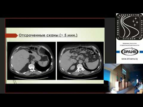 Лечение хронического гепатита при беременности
