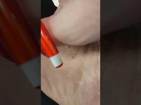 Dermatite de atopic em uma virilha em homens