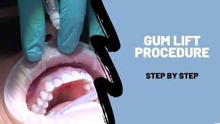 Gum Lift - Step by Step Procedure Breakdown