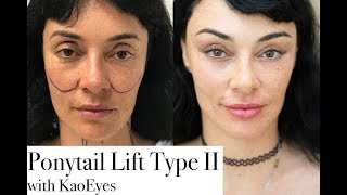 Ponytail Lift™ Type II w/ KaoEyes. Amazing Plastic Surgery Face Lift Results!