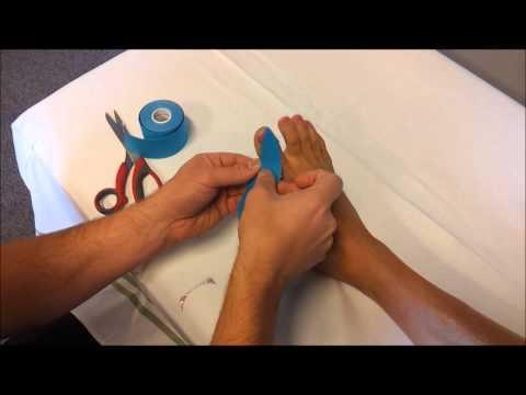 Strephexopodia masaż stóp dziecko