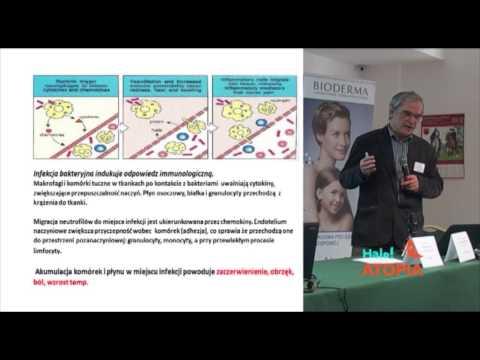 Leczenie łuszczycy w Kaliningradzie forum
