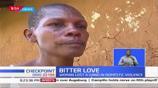 Woman in Homa Bay loses hand in domestic violence over suspicion of dating another man