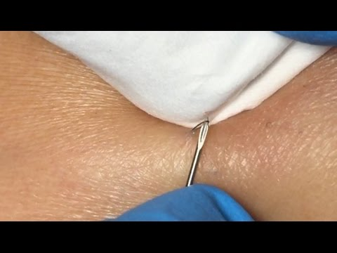 Ingrown Hair Extraction!