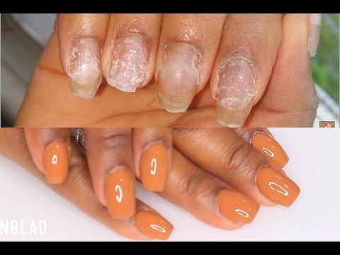 Video How I fix my nails with tips and acrylic (speed video)