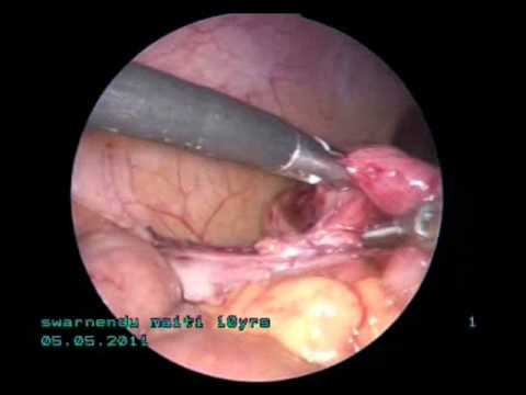 subhepatic retrocaecal appendix - laparoscopic management