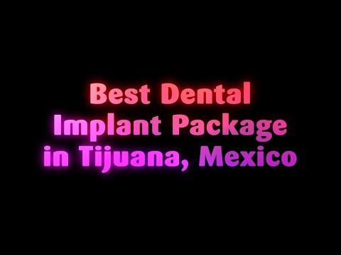 Best Dental Implant Package in Tijuana, Mexico