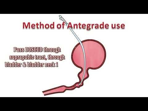 Dilatacja zwężeń cewki moczowej u mężczyzn