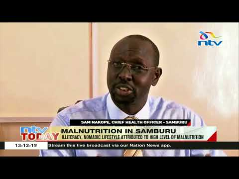 Samburu community faced with upto 35% malnutrition